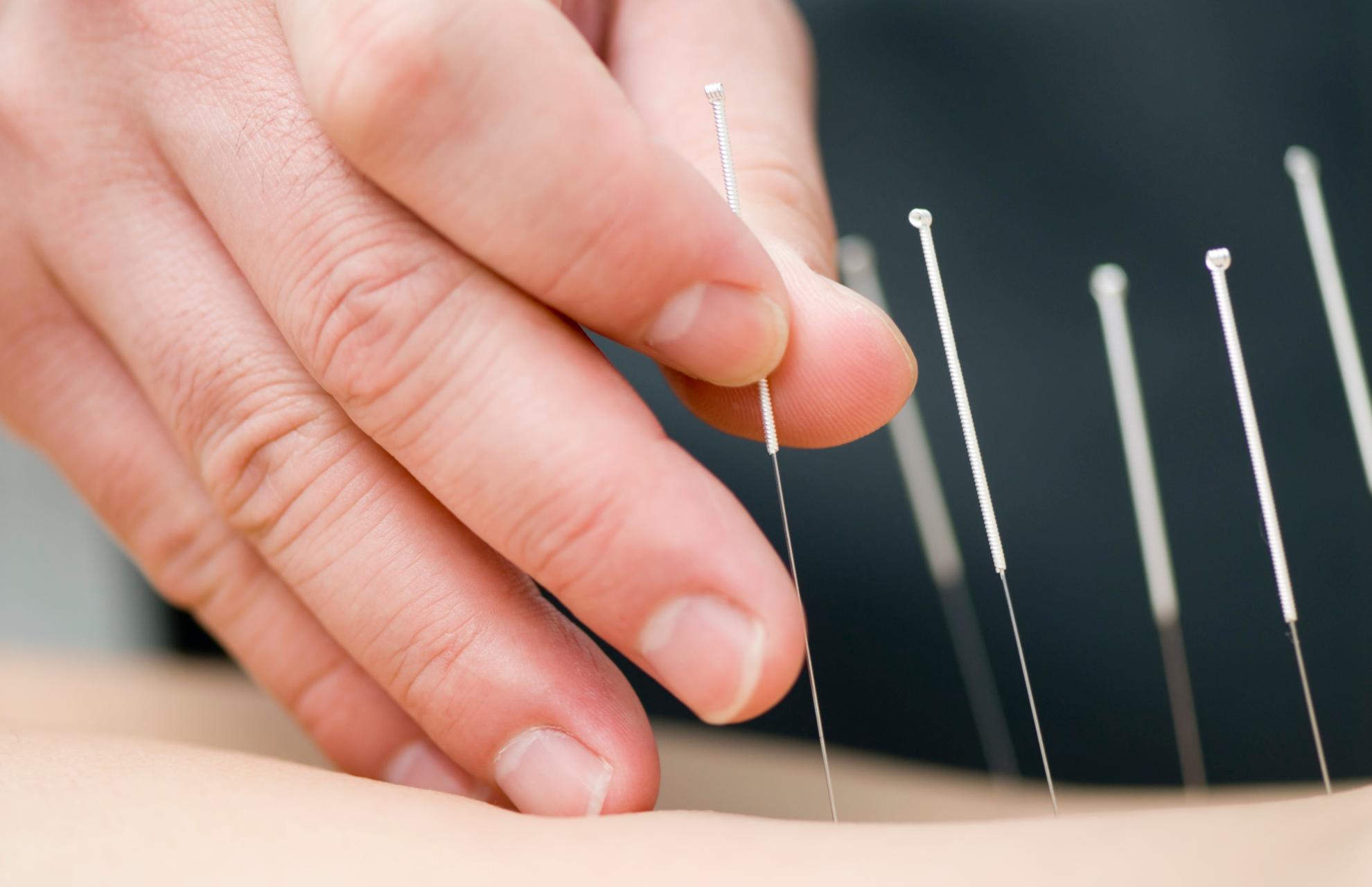 Иглоукалывание при болях в спине. Может ли иглоукалывание заменить операцию?
